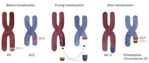 Diagram of CML translocation